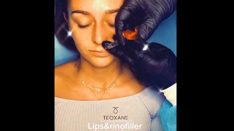 Rinomodelación + Aumento de labios - Clínica Rossi Lemarie