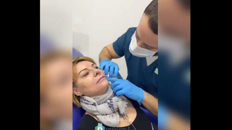 Aumento de labios - DERMATOdesign