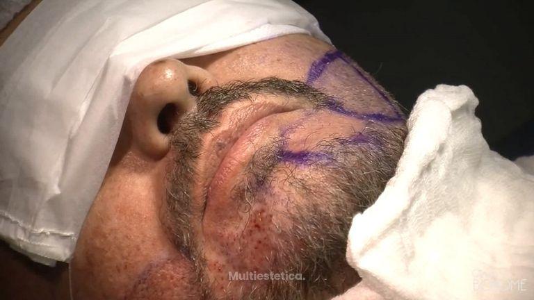 implante barba