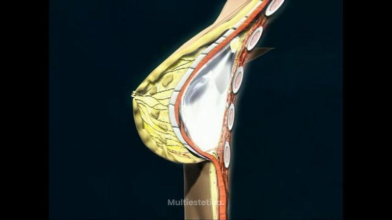 ¿Cómo se introducen las prótesis mamarias?