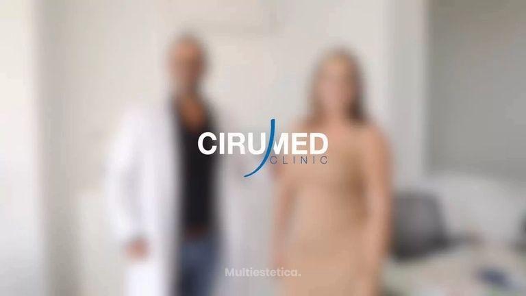 Testimonio de paciente - BBL - aumento de glúteos brasileño