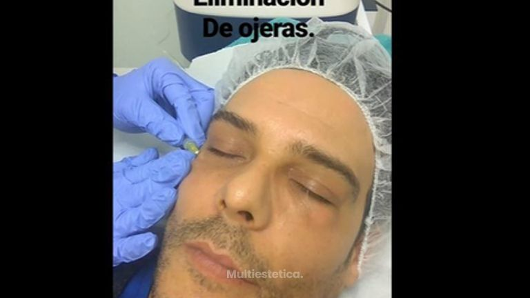 Carboxiterapia Eliminación de ojeras