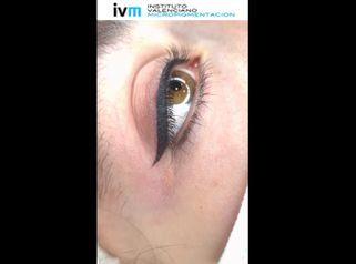 Micropigmentación - Instituto Valenciano Micropigmentación