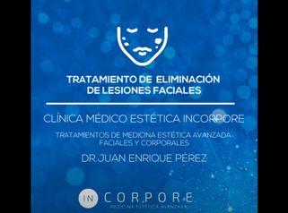 Tratamiento de eliminación de Lesiones Faciales