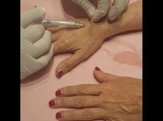 Infiltración en manos - Policlínica Cume