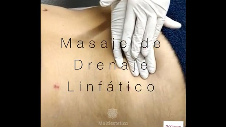 Drenaje linfático - Clínica De Medicina Estética Córdoba