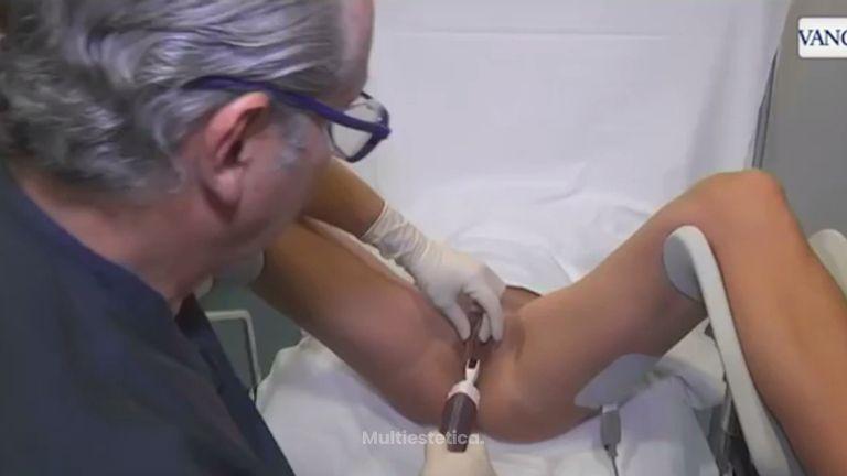 Combatir la laxitud vaginal