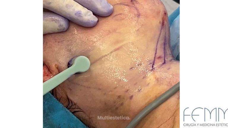 Liposucción de papada - Clínica Femm