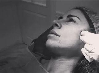 Hilos tensores faciales - Clínica Pedralbes