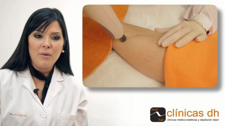 La radiofrecuencia también sirve para tratar cicatrices