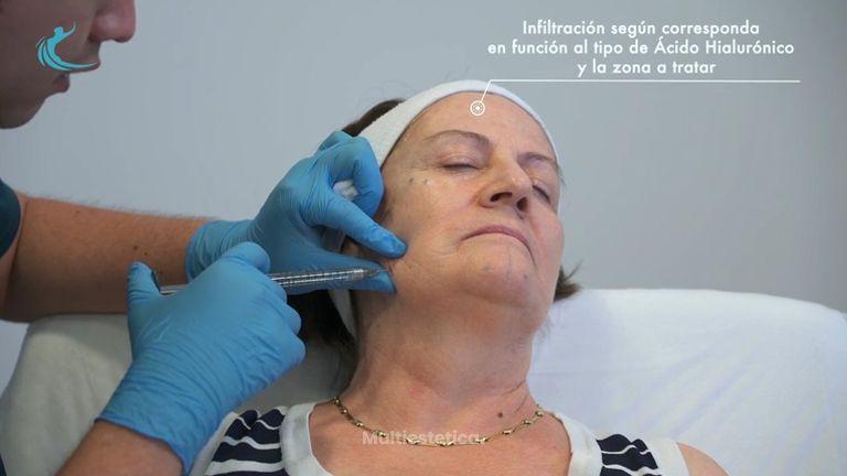 Clínica CIME - Tratamiento Ácido Hialurónico - Dr. Manuel Rubio