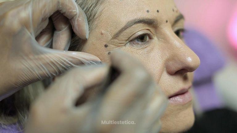 Botox para rejuvenecer el rostro eficazmente