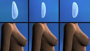 Cirugía de aumento de pecho