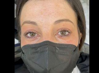 Blefaroplastia - Clínica Espías-Alonso