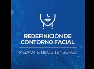 Tratamiento de redefinición de óvalo facial con Hilos Tensores