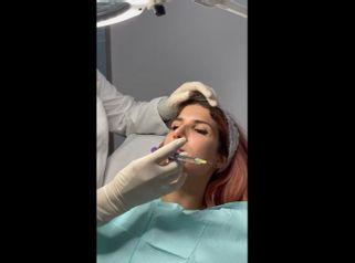 Aumento de labios - Clínica Amédic