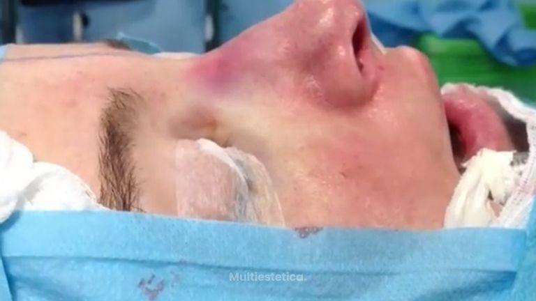 Consigue la nariz que deseas