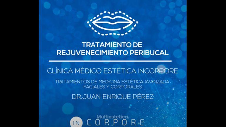 Tratamiento de Rejuvenecimiento Peribucal