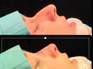 Rinoplastia (simulación y resultado real superpuestos)