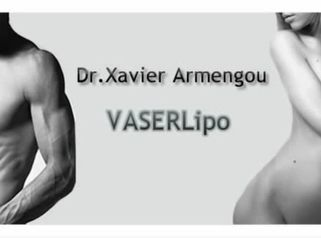 Megalipo-Vaserlipo