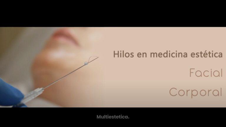 Hilos de tracción en medicina estética