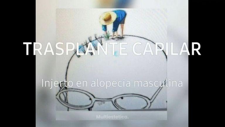 Trasplante Capilar - Doctora Barba Martínez