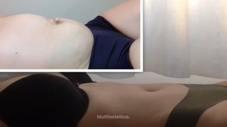 Consigue el abdomen que deseas