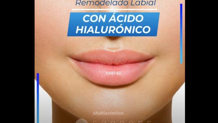 Remodelado de Labios con Ácido Hialurónico