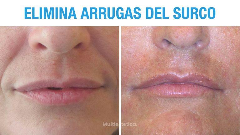 Antes y Después de Relleno de Surco Nasogeniano