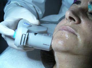Testimonio de Tratamiento de Hifu Facial en Corpobel Salamanca