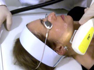 8 cosas que no sabes sobre el rejuvenecimiento facial