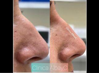 Rinomodelación - ClinicaAlbayC