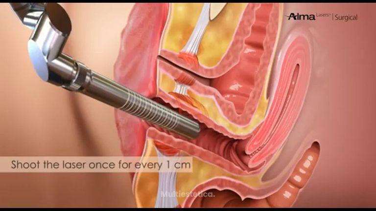 rejuvenecimiento vaginal con láser