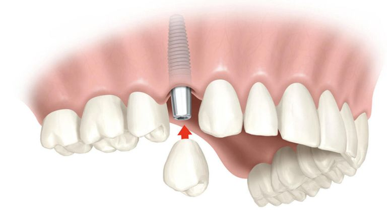 Colocación de un implante inmediato post-extracción