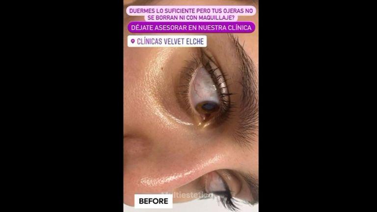 Eliminación de las ojeras - Clínicas Velvet