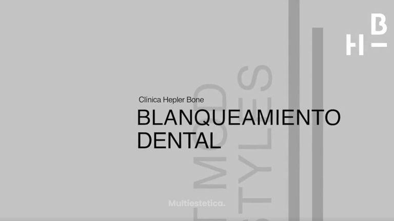 Blanqueamiento dental: en casa y en la clínica