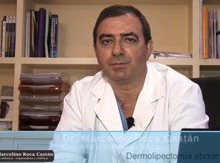 Dermolipectomía abdominal