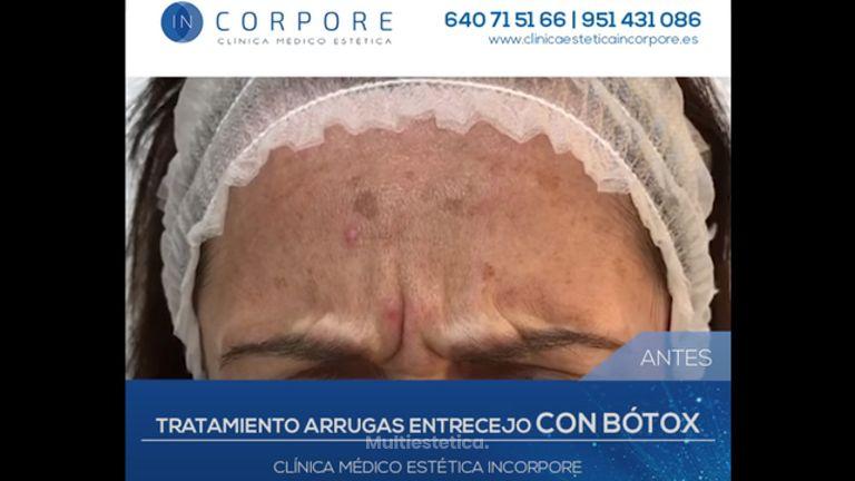 Tratamiento Arrugas con Bótox