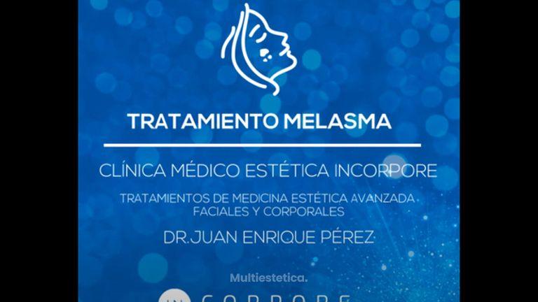 Tratamiento de Melasma