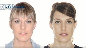 preparación cirugía maxilofacial