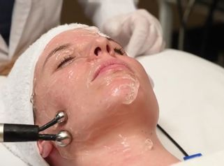 Rejuvenecimiento facial - Policlínica Cume
