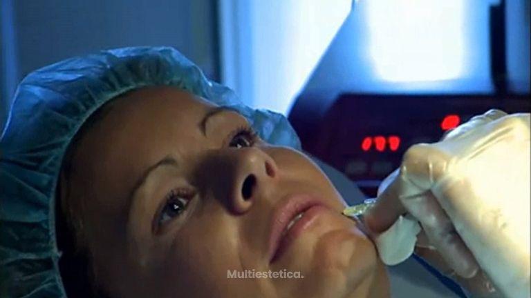 Combatir el envejecimiento con rellenos faciales