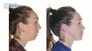 Cirujano maxilofacial