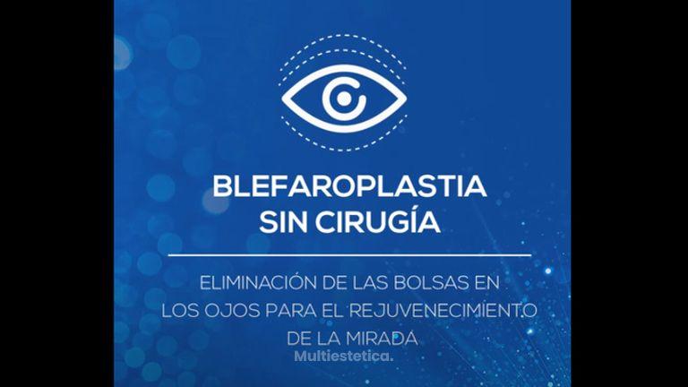 Tratamiento Blefaroplastia sin Cirugía
