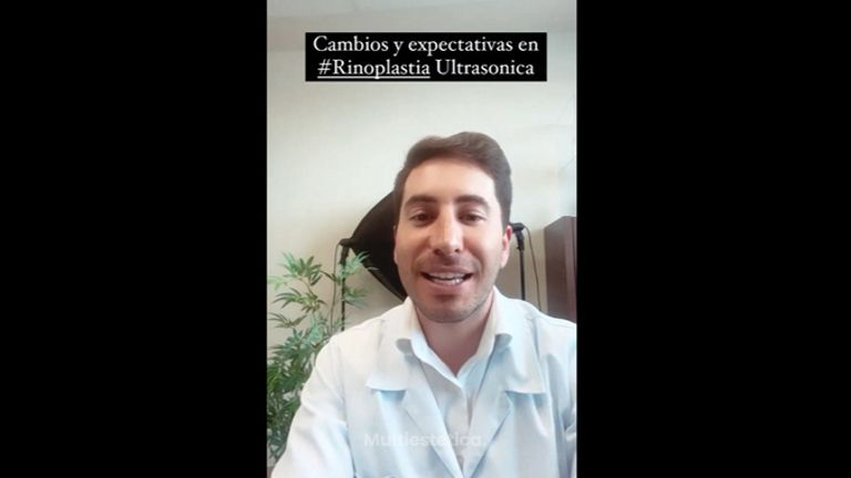Rinoplastia - Dr. Pérez Villar
