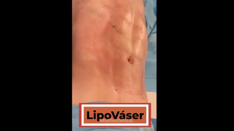 Liposucción - Clínicas Doctor Life