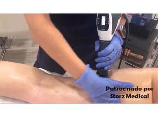 Ondas de choque para tratar celulitis - Storz Medical