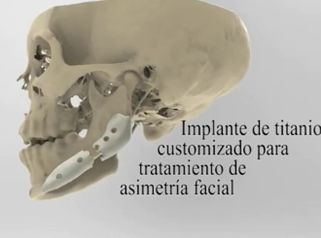 Tratamiento de asimetría facial