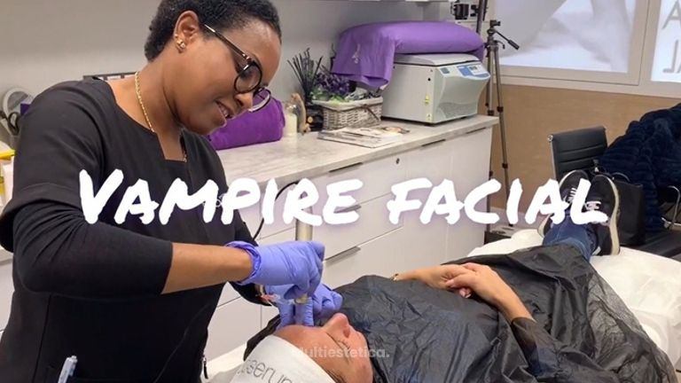 Vampire facial - Clínica Dra Rigo