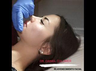 Rejuvenecimiento facial - Dr. Daniel Colomer